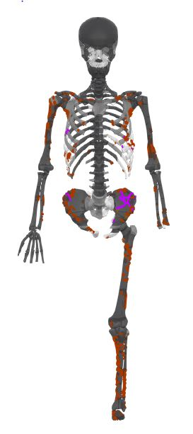 Schematic of the skeleton with cuts highlighted